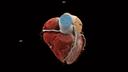 Low-dose Coronary CTA Spiral.