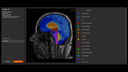 AI-Rad Companion Brain MR f&uuml;r die Morphometrie von Siemens Healthineers segmentiert automatisch das Gehirn auf MRT-Bildern, misst das Volumen der Gehirnareale und weist Normabweichungen in Reports aus, die Neurologen f&uuml;r Diagnostik und Therapie nutzen.<br />