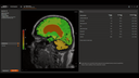 AI-Rad Companion Brain MR for Morphometry Analysis from Siemens Healthineers automatically segments the brain in MRI images, measures brain volume, and marks volume deviations in result tables used by neurologists for diagnosis and treatment.