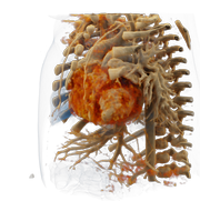 Spacial presentation of the heart in 3D