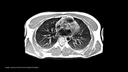 siemens-healthineers-magnetom-free-max_pulmonary