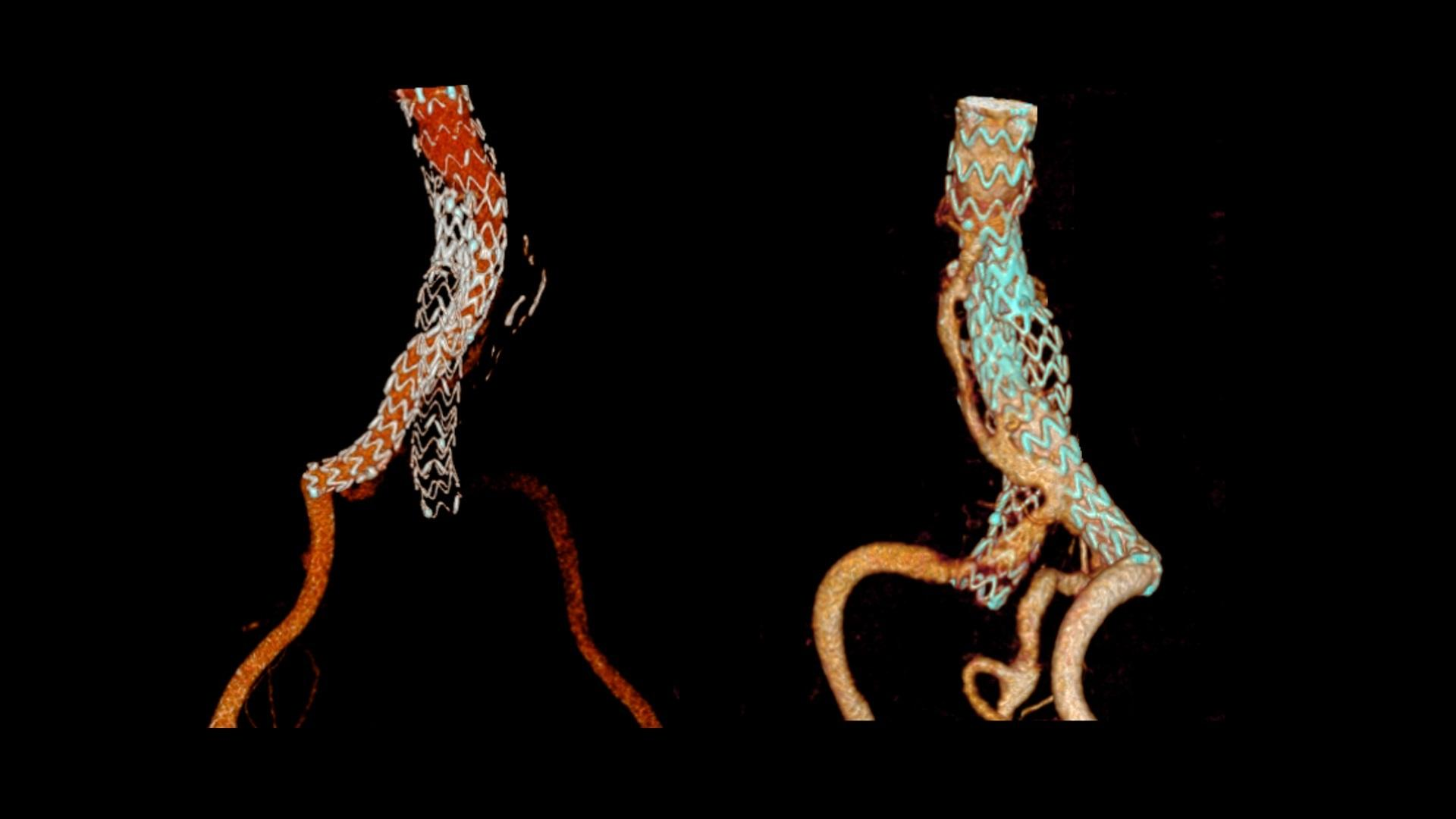 cVRT images show the twisted iliac prostheses. The left iliac prosthesis is occluded showing no blood flow within, and the left external iliac artery is fed by a type III endoleak.