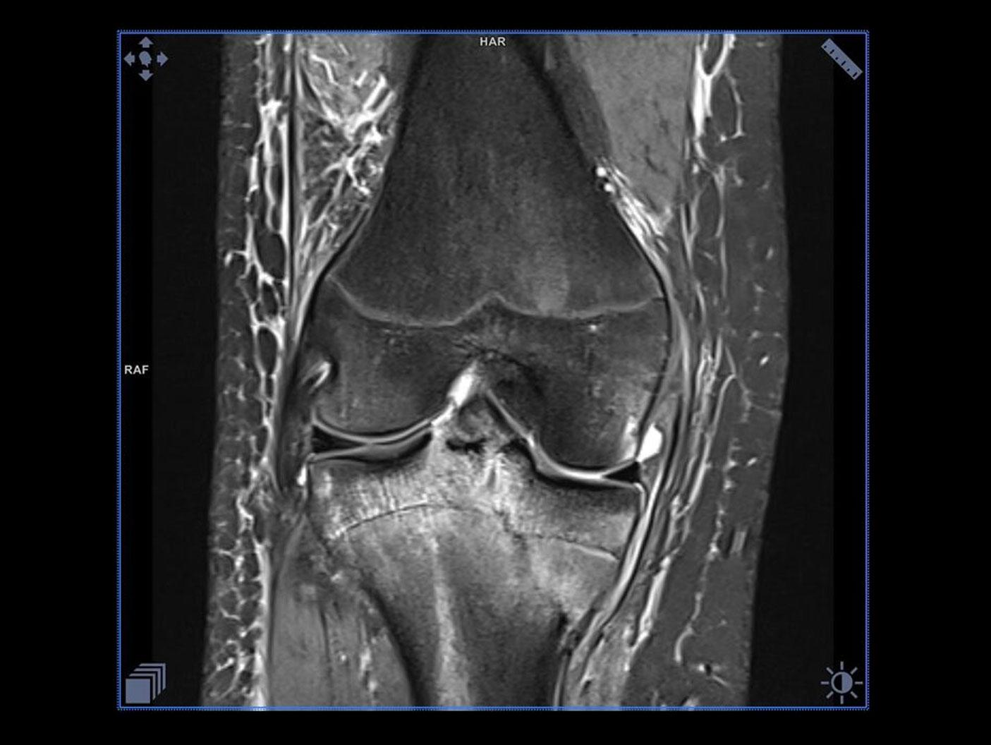 MSK Phoenix Images for MAGNETOM Sempra 1.5T – Knee: Using the 8-ch kneel coil