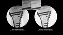Clinical image comparison metal correction with Cios Select mobile C-arm machine