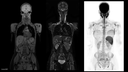whole-body imaging