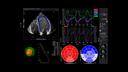 Velocity Vector Imaging 5P1 GLS