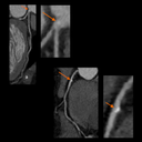 Coronary CTA Cardiac imaging with high heart rates >80 bpm