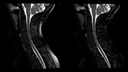 C-spine imaging with CoilShim