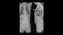 Low-dose examination of scoliotic malposition in two planes
