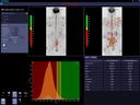 Quantitative Whole-Body MRI