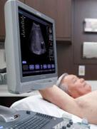 ACUSON X300 ultrasound system