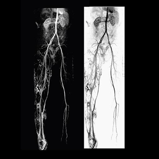 TimCT Angiography