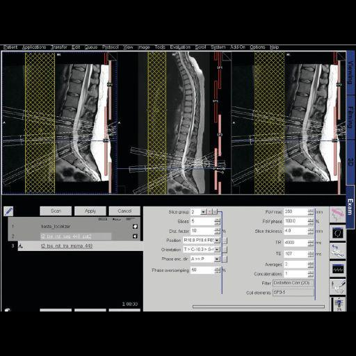 AutoAlign Spine