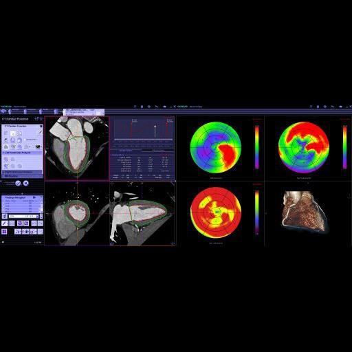 syngo.CT Cardiac <br />