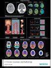 CT Neuro Anatomy & Pathology