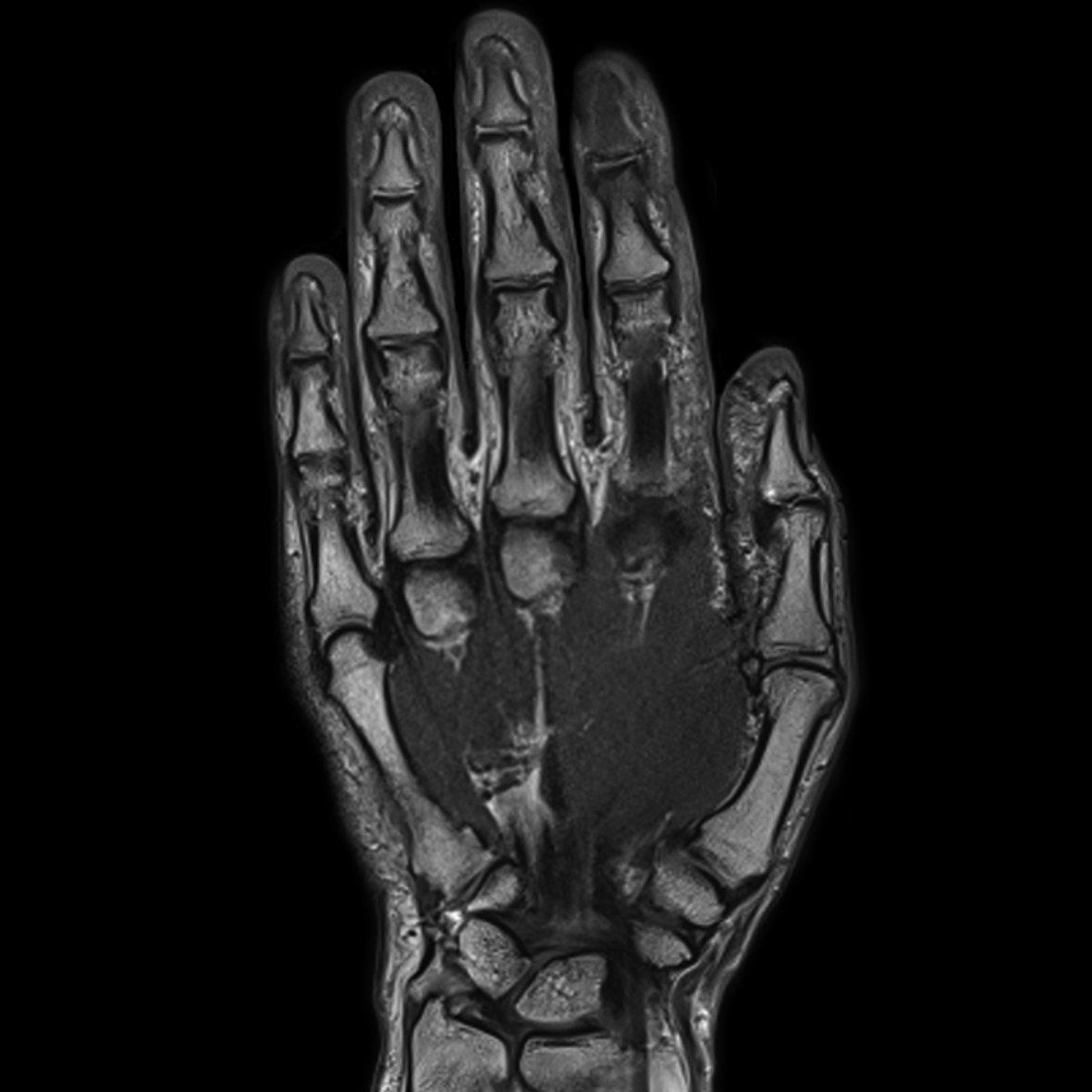 Hand, PD TSE, GRAPPA 4
