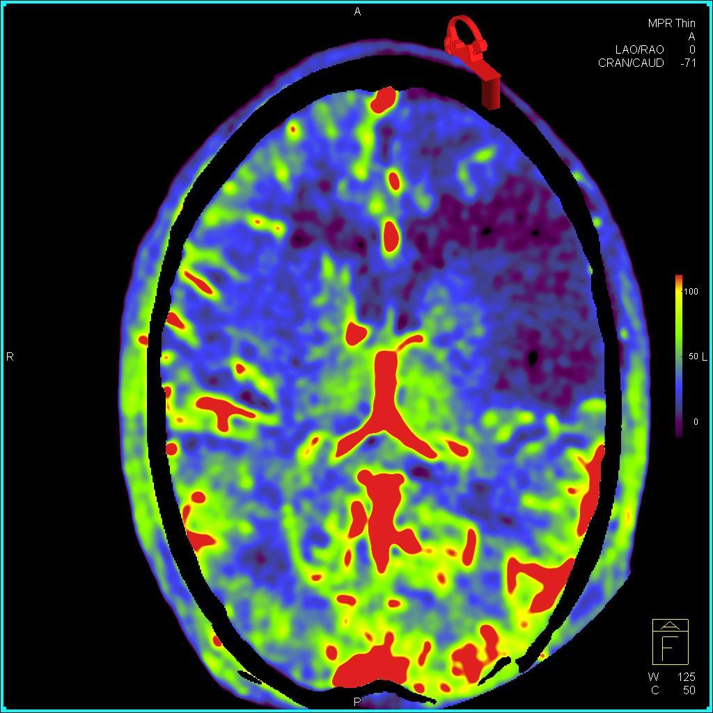 syngo DynaPBV Neuro