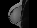Breast:<br />T2 TSE, GRAPPA 2