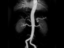 Angiography:<br />3D FLASH CE-MRA, MIP, GRAPPA 2