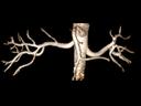 Angiografia:<br />VRT saturazione del tessuto adiposo TrueFISP 3D, GRAPPA 2