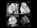 CT-like imaging with syngo DynaCT Cardiac