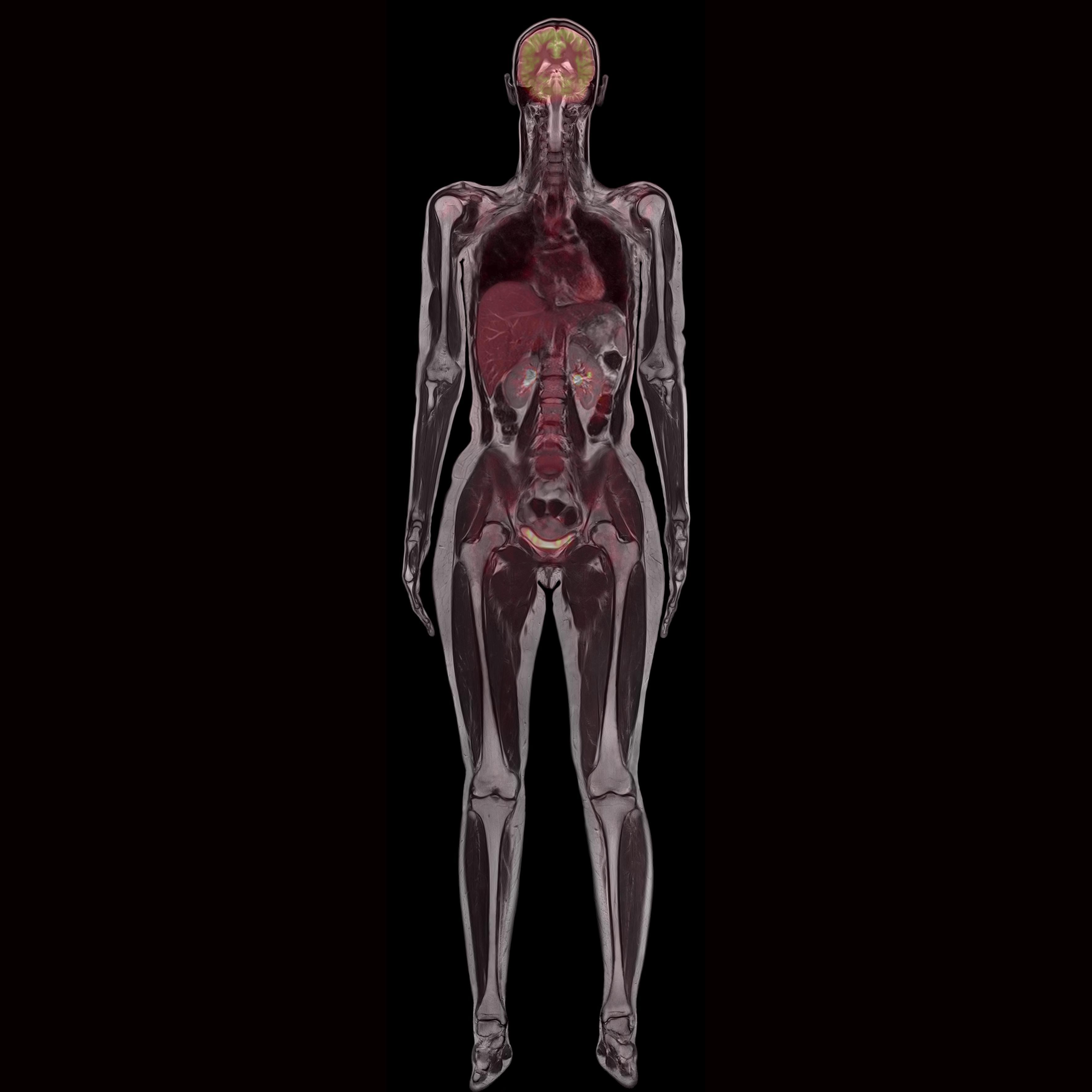 Biograph mMR - Whole Body