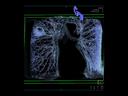 bronchial carcinomas
