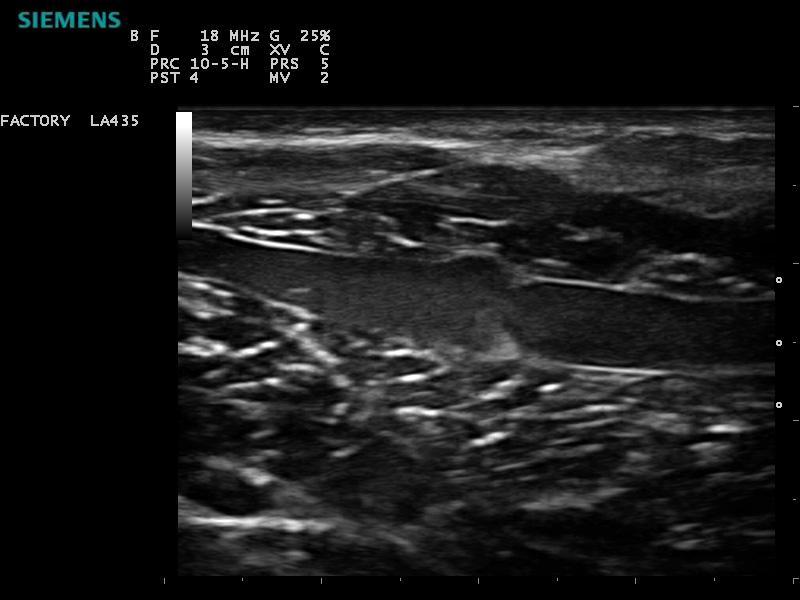 ACUSON P300 Ultrasound System - Vascular - Lower Leg Valve