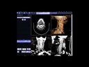 syngo DynaCT Interventional Neuroradiology