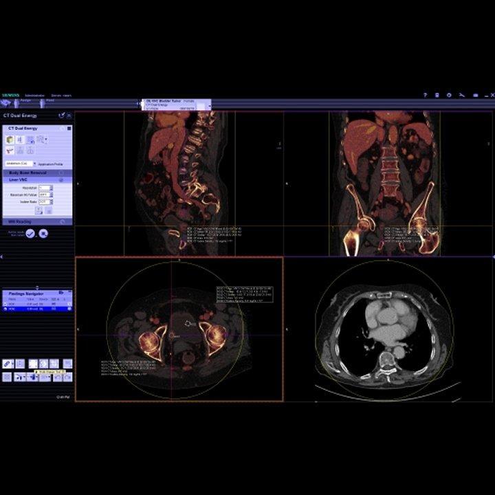 syngo.CT DE Virtual Unenhanced