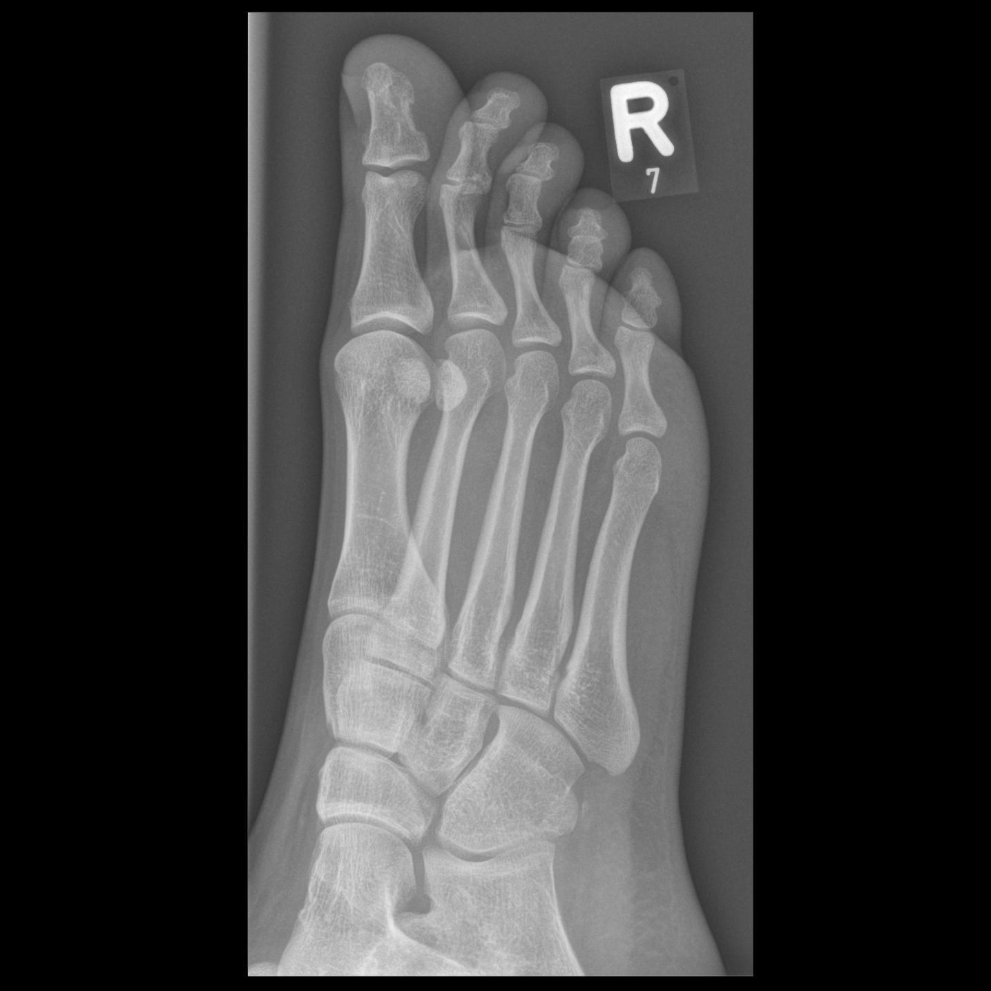 Mira wiD, Foot II, oblique