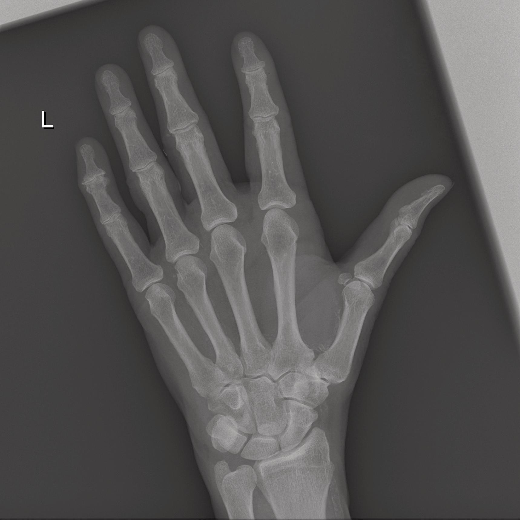 Mira wiD, Hand, ap
