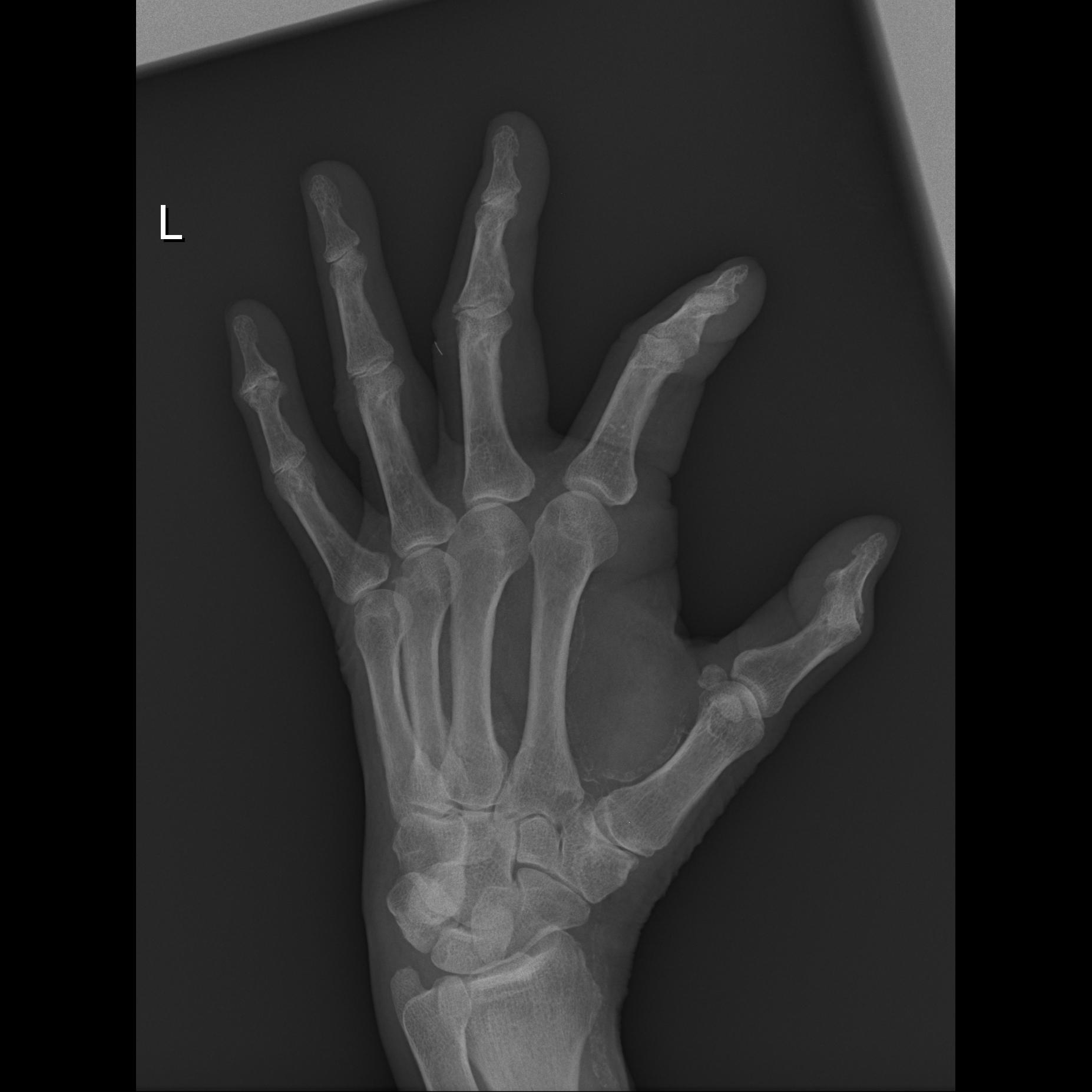 Mira wiD, Hand, lateral