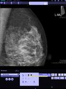syngo.Breast Care