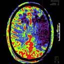Interventional Imaging in Ischemic Stroke