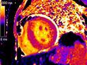 Siemens - MRI - MAGNETOM Aera - Кардиология