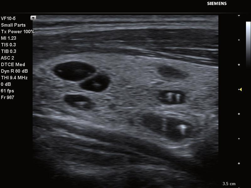 Thyroid Cysts with Calcifications