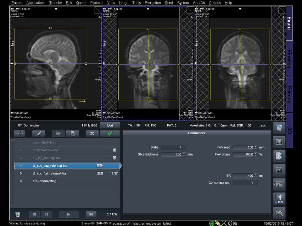 Siemens - MRI - RT Dot Engine - Image - Teaser