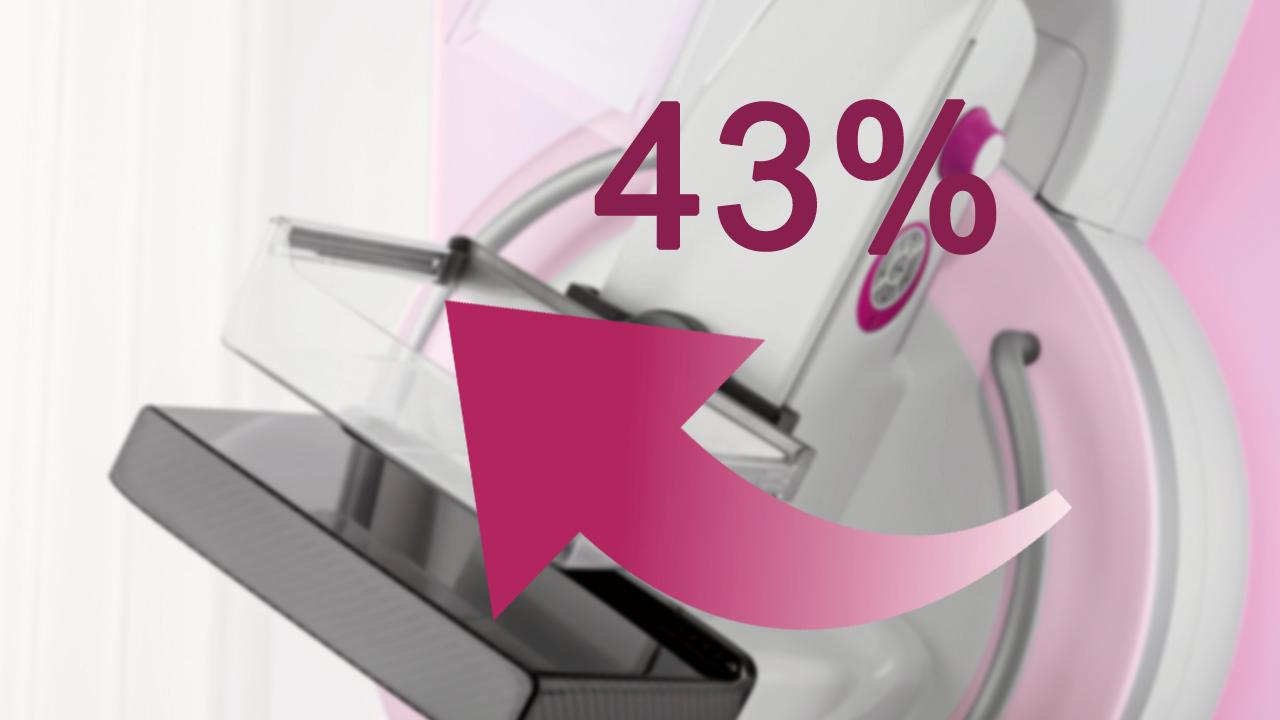 The proof: True Breast Tomosynthesis increases breast cancer detection rate by 43%<br />