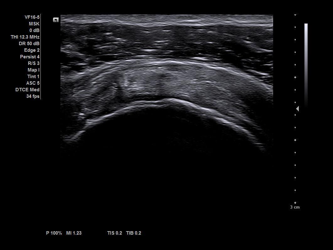 Supraspinatus tendon