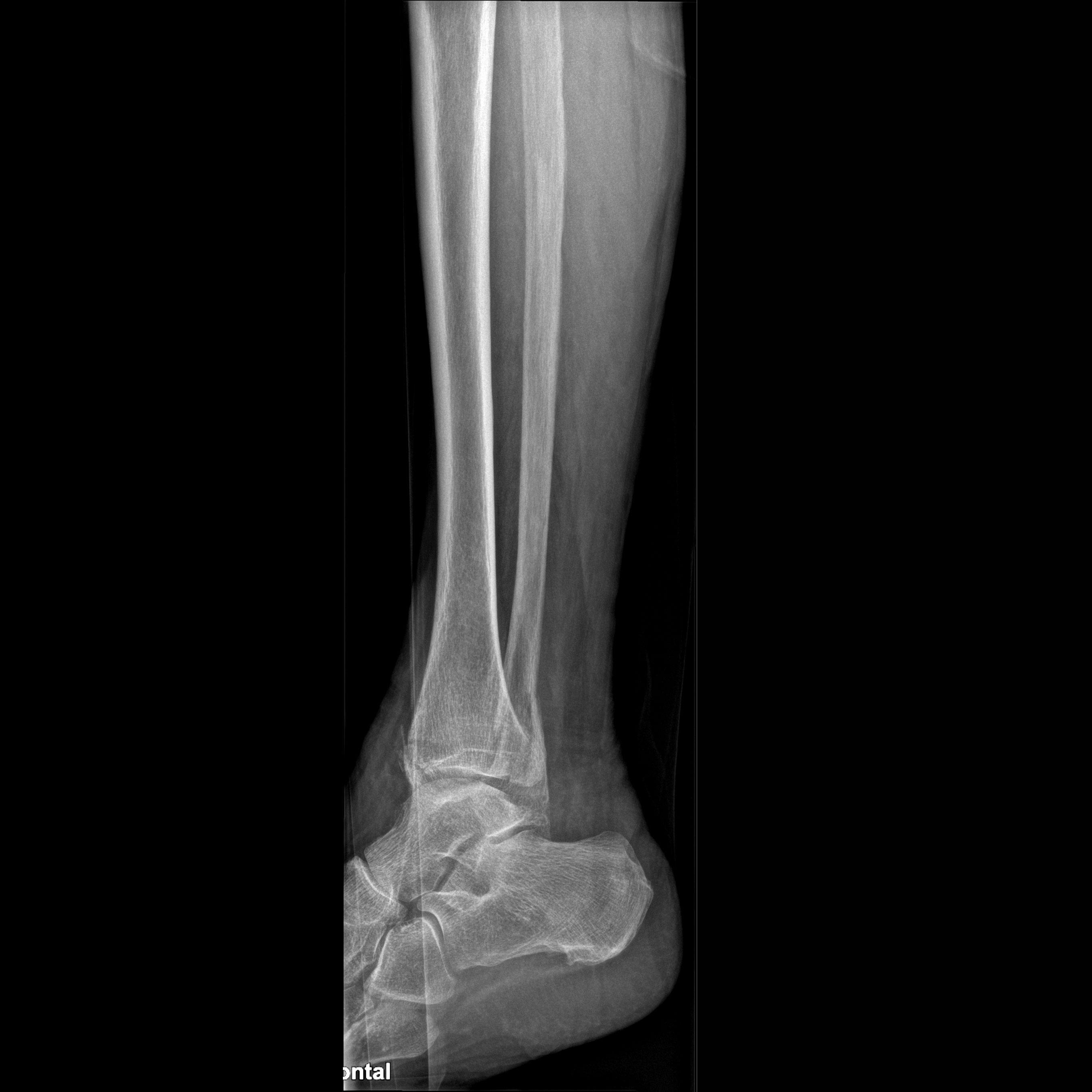 Mobilett Mira Max Ankle lat Image