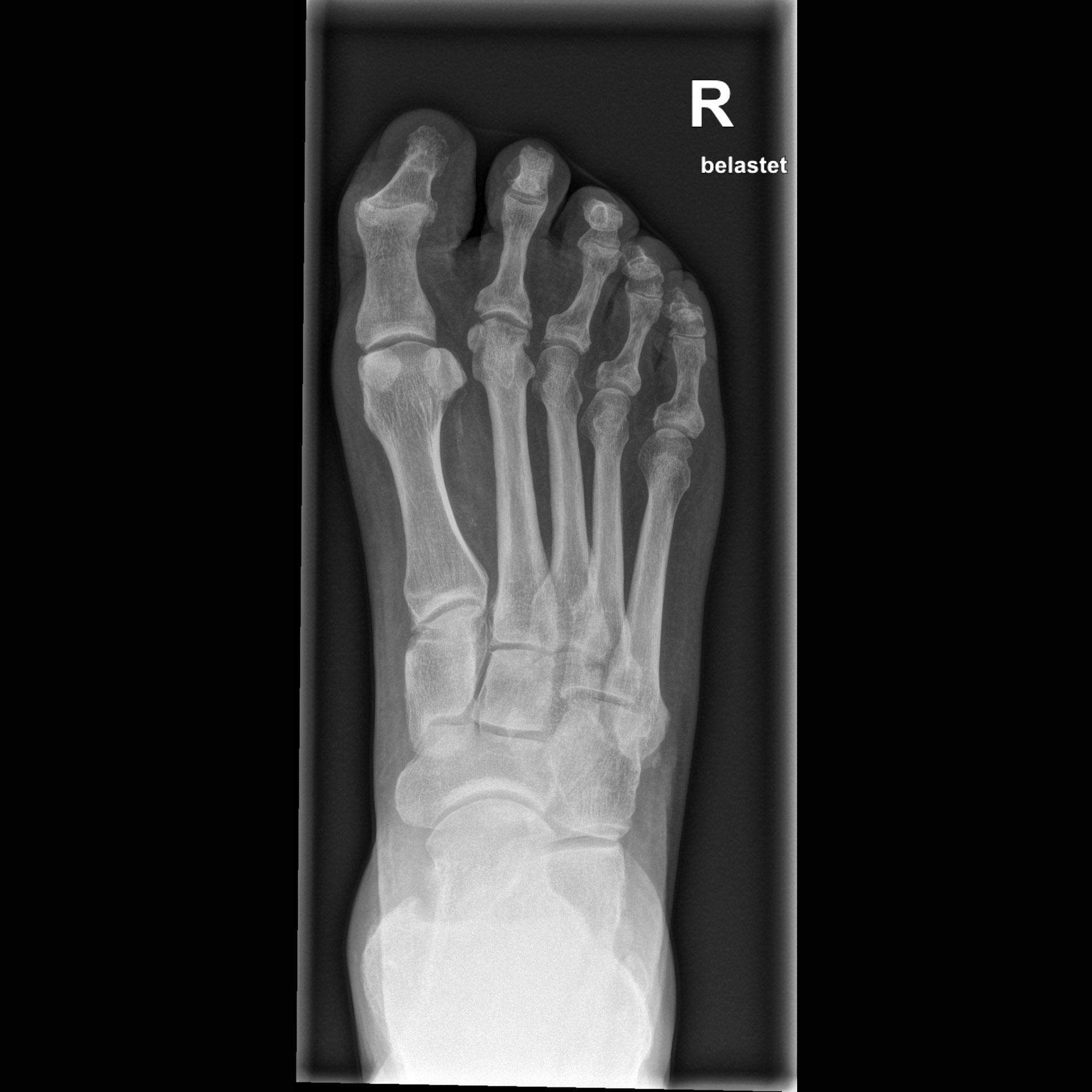 Mobilett Mira Max Foot III d.v. standing Image