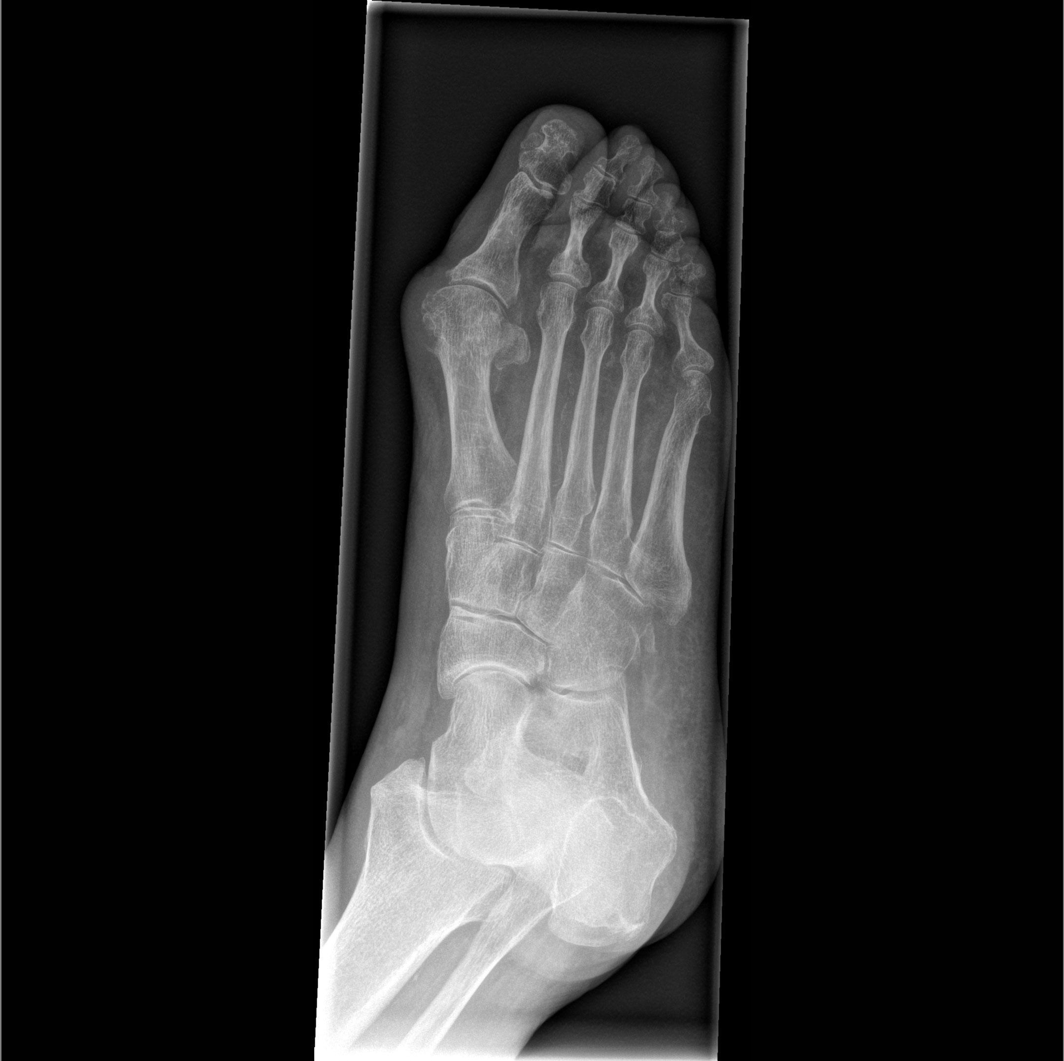 Mobilett Mira Max Foot II oblique Image