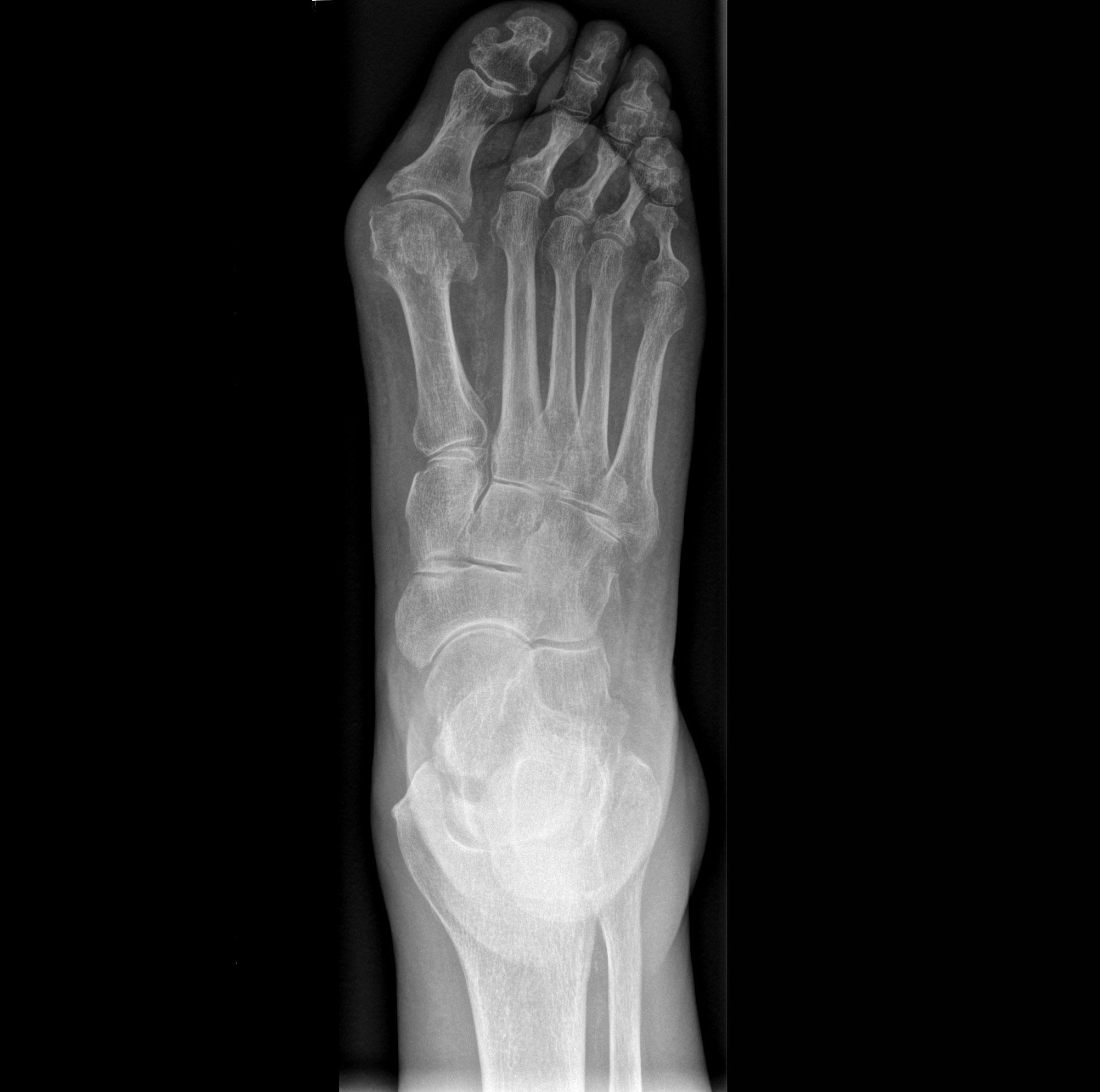 Mobilett Mira Max Foot II d.v. Image