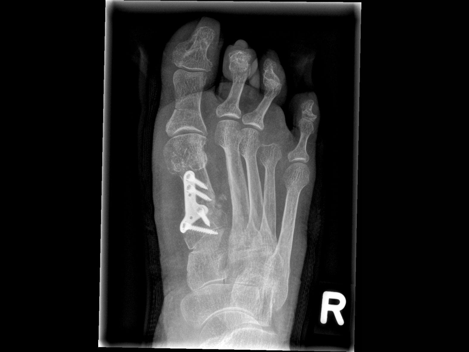 Mobilett Mira Max Foot d.v. Image