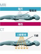 MR-PET 検査イメージ