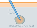 RFA cancer treatment