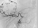 SIRT procedureliver embolisation DSA