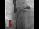 syngo TrueFusion<br />Precise landmarks for LAA landing zone and orifice with TrueFusion <br />Courtesy: Prof. Georg Nickenig, MD, University Hospital Bonn, Germany