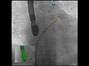 syngo TrueFusion<br />Device deployment during LAA closure<br />Courtesy: Prof. Georg Nickenig, MD, University Hospital Bonn, Germany